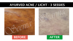 Acne behandeling Seema Sharma
