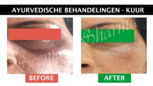 Ayurvedische gezichtsbehandelingen