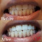 Tanden verbeteren