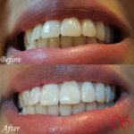 Verantwoord tanden bleken