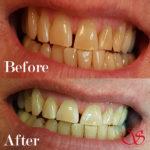 Tanden verbeteren in Rotterdam
