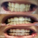 Tanden Bleken Rotterdam Voordelig