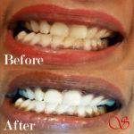 Goedkoop tanden laten bleken recensies
