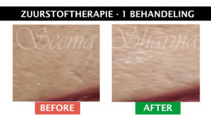 Seema Sharma Zuurstof Therapie Before and After Website