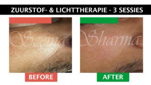 Seema Sharma Zuurstof Therapie Behandelingen Before and After Website